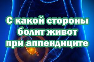 С какой стороны болит живот при воспалении аппендикса