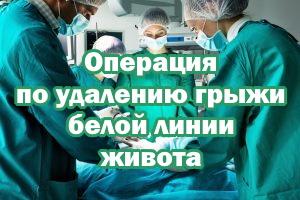 Операция по иссечению грыжи белой линии живота