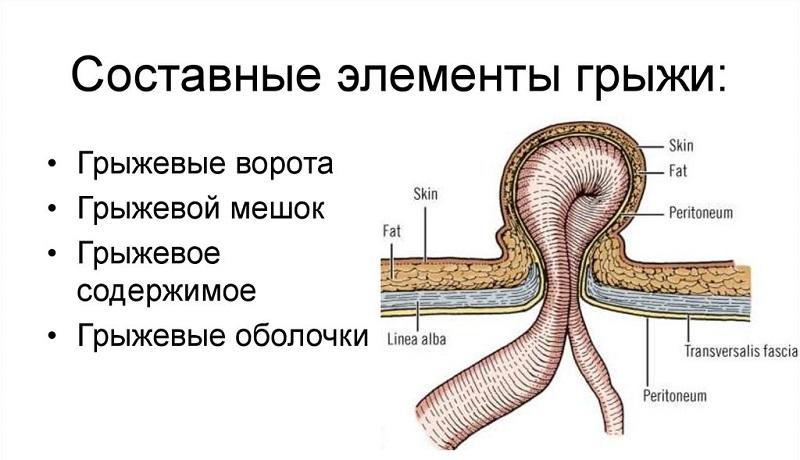 Составные части грыжи