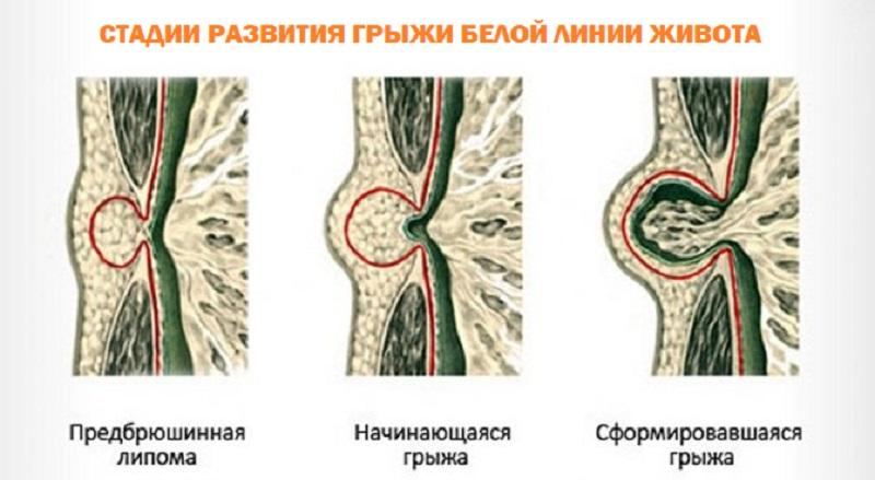 Этапы развития грыжи