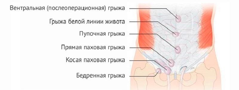 Виды грыжи животика