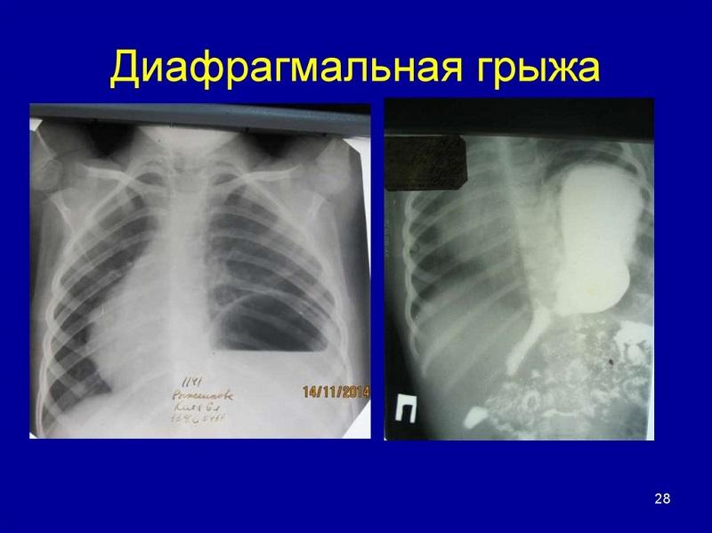 Снимок диафрагмальной грыжи