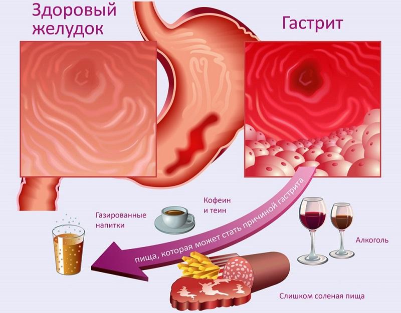 Здоровый желудок и больной