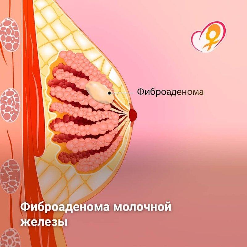 Фиброаденома груди