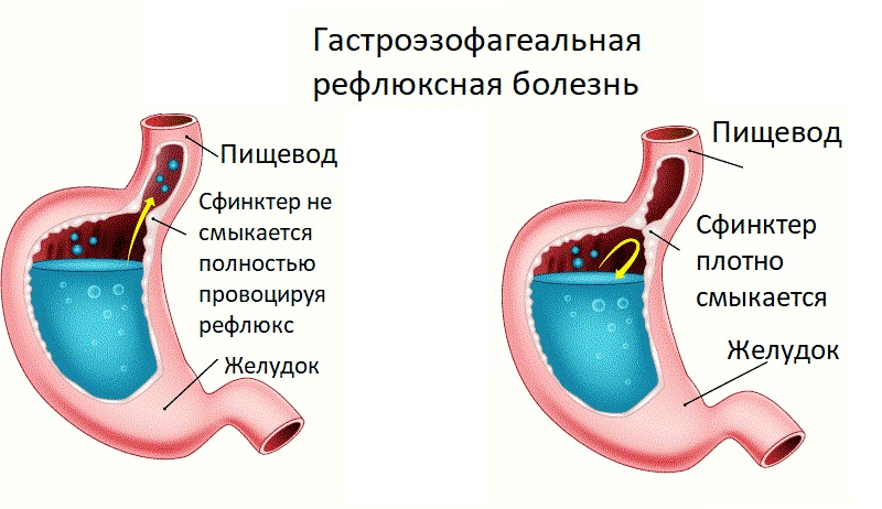 Гастроэзофагеальная рефлюксная патология