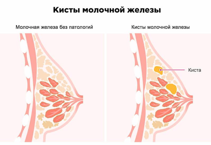 Киста груди