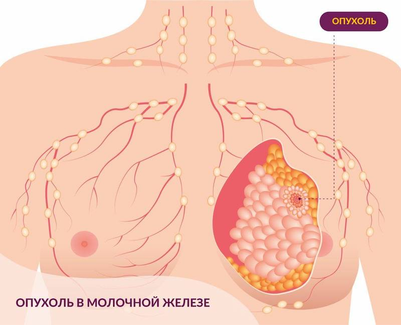 Онкология молочной железе