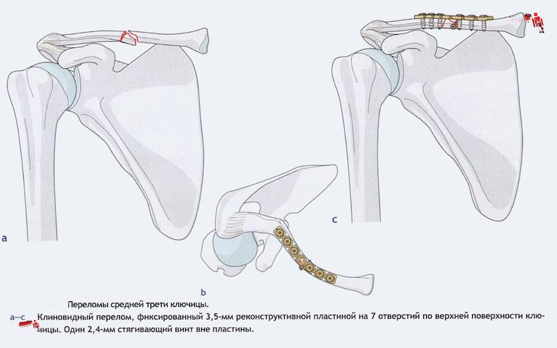 Перелом ключичной кости