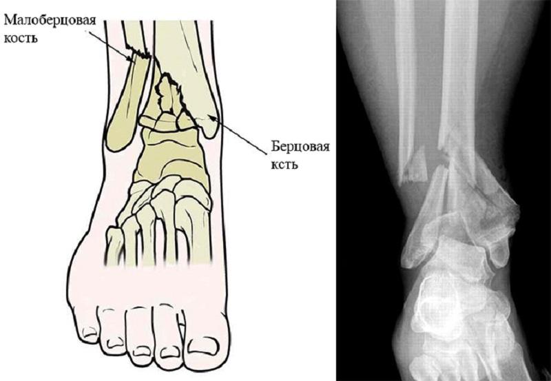 Перелом ноги