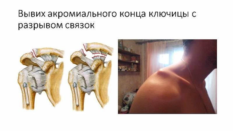 Вывих ключичной кости